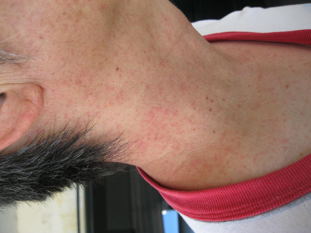 画像 : デング熱の症状と画像・まとめ - NAVER まとめ